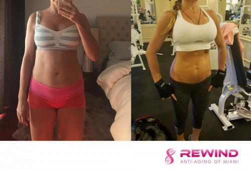 female-weight-loss-rewind1-