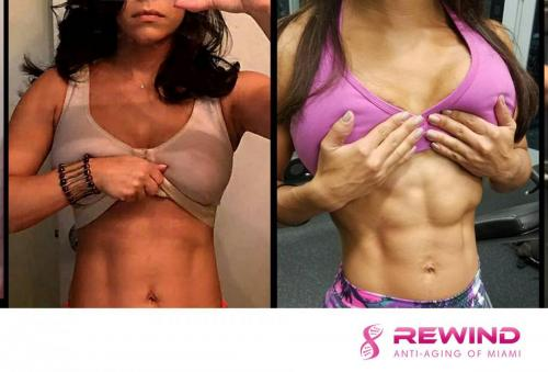 female-weight-loss-rewind