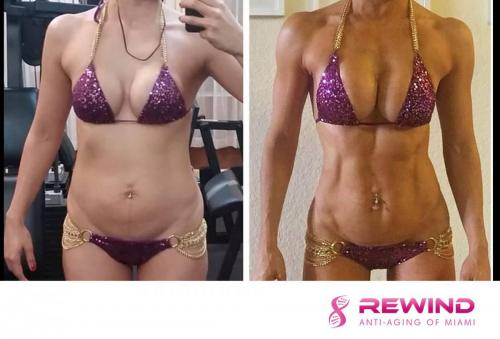 female-weight-loss-rewind